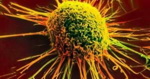 Kαρκινική ανάπτυξη
