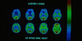 Πρόσεξε το Αλτσχάιμερ