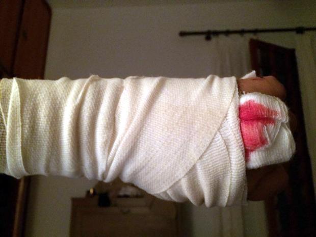 Τραυματισμός από Πίτμπουλ